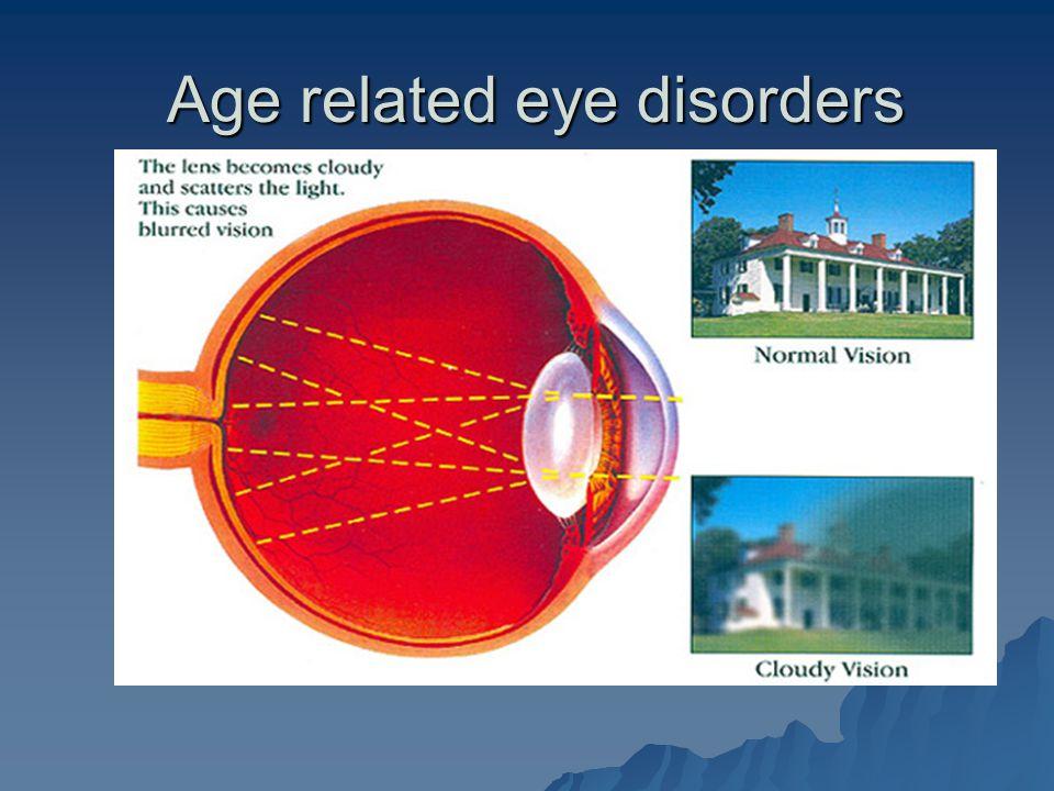 Age related eye disorders Age related eye disorders