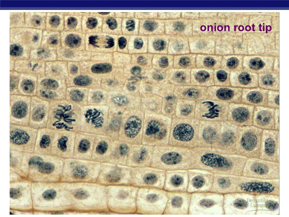 AP Biology Mitosis in plant cell