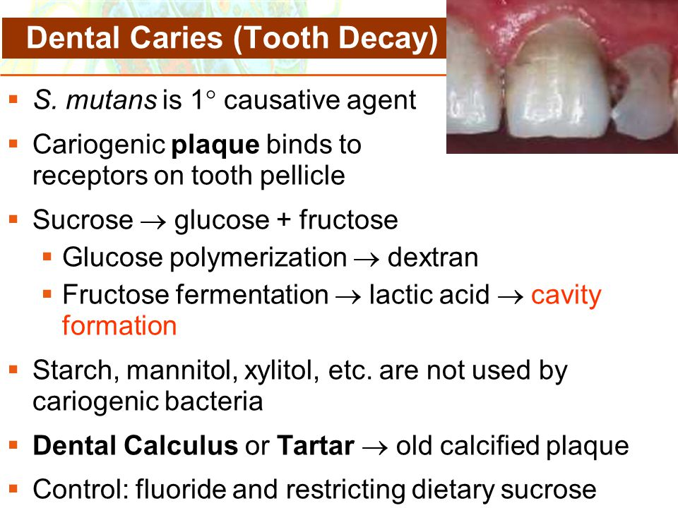 Copyright © 2006 Pearson Education, Inc., publishing as Benjamin Cummings  S. mutans is 1  causative agent  Cariogenic plaque binds to receptors on