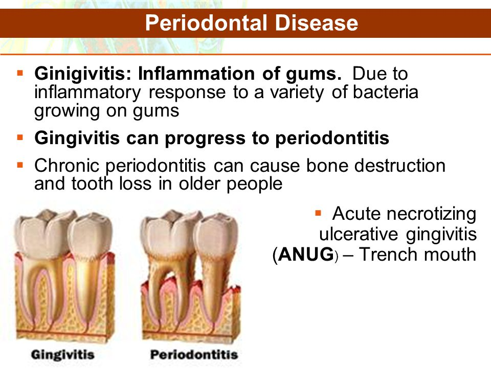 Copyright © 2006 Pearson Education, Inc., publishing as Benjamin Cummings Periodontal Disease  Ginigivitis: Inflammation of gums. Due to inflammatory