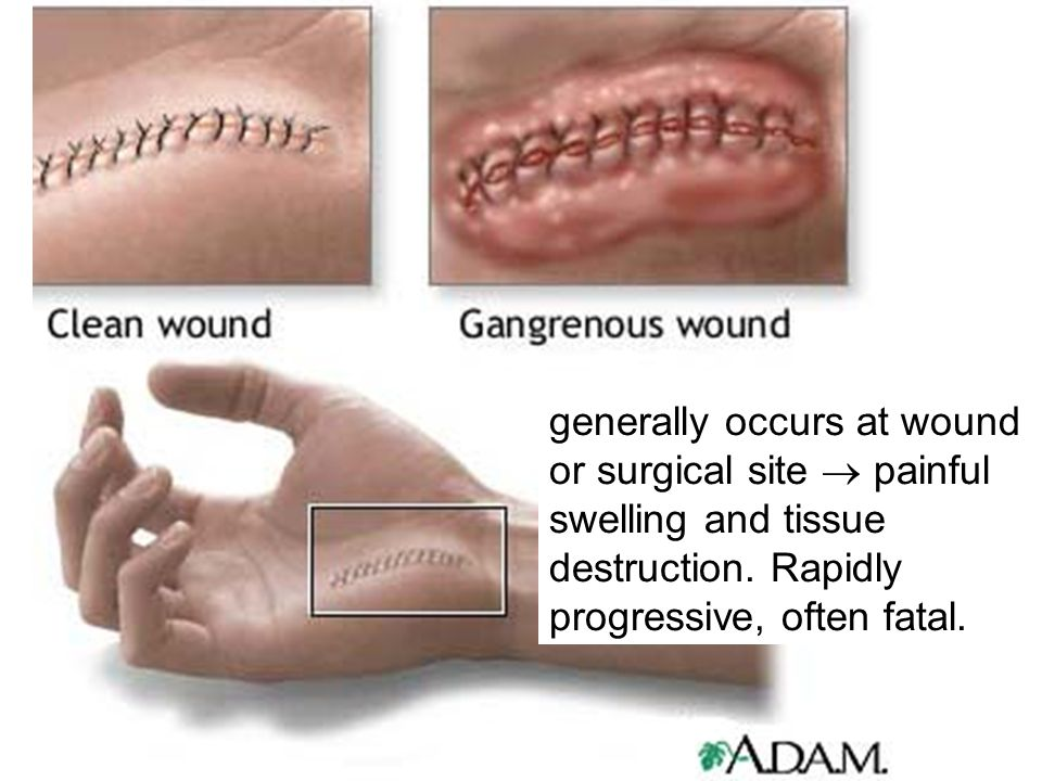 generally occurs at wound or surgical site  painful swelling and tissue destruction. Rapidly progressive, often fatal.