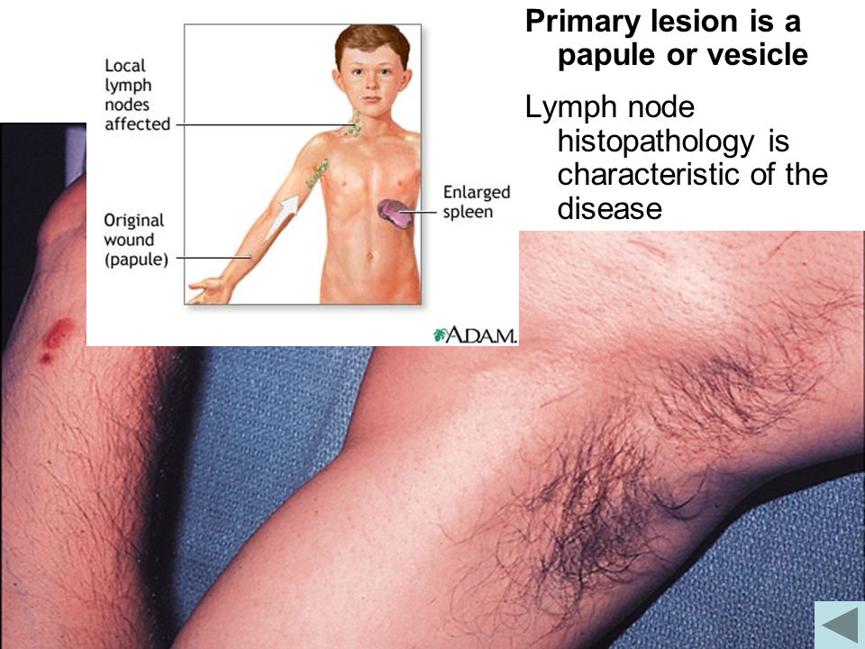 Cat Scratch Disease Primary lesion is a papule or vesicle Lymph node histopathology is characteristic of the disease