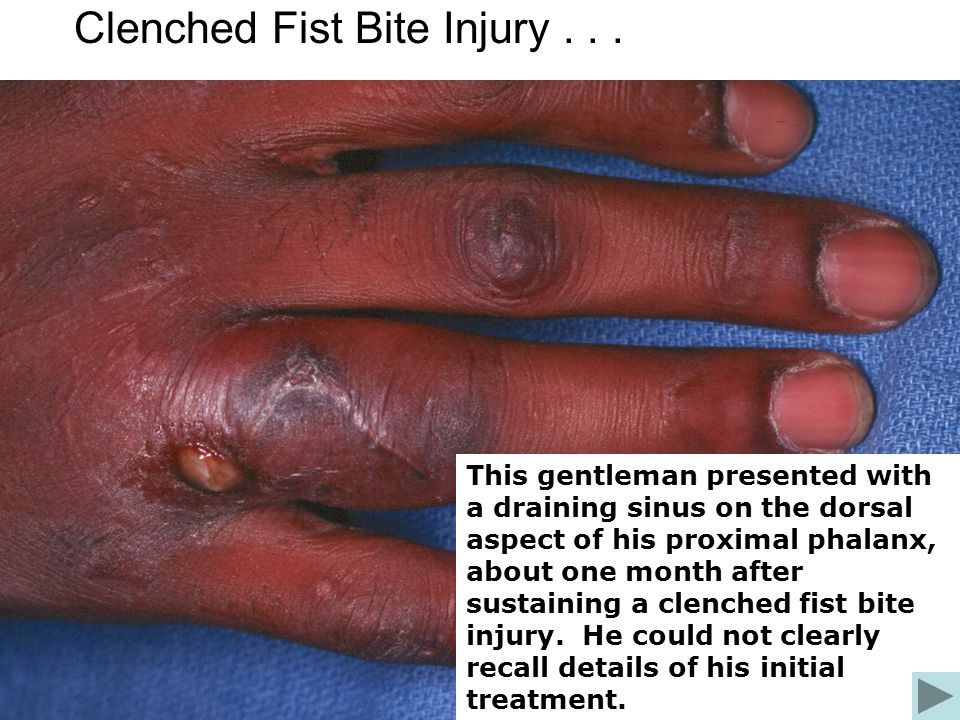 Clenched Fist Bite Injury... This gentleman presented with a draining sinus on the dorsal aspect of his proximal phalanx, about one month after sustai