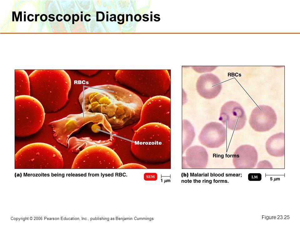 Copyright © 2006 Pearson Education, Inc., publishing as Benjamin Cummings Microscopic Diagnosis Figure 23.25