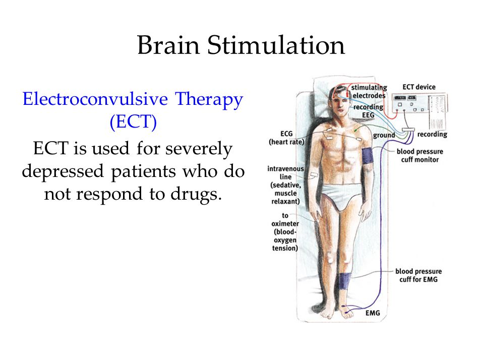 Brain Stimulation Electroconvulsive Therapy (ECT) ECT is used for severely depressed patients who do not respond to drugs.
