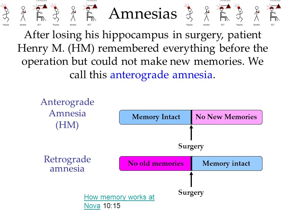 No New Memories Amnesias Anterograde Amnesia (HM) Retrograde amnesia Surgery After losing his hippocampus in surgery, patient Henry M. (HM) remembered