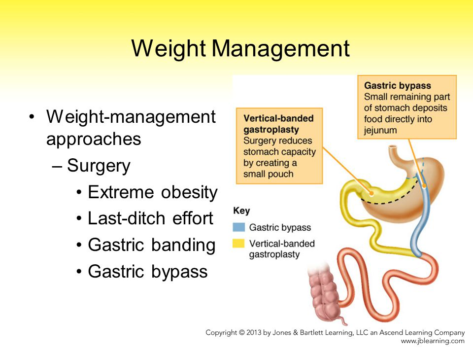 Weight Management Weight-management approaches –Surgery Extreme obesity Last-ditch effort Gastric banding Gastric bypass