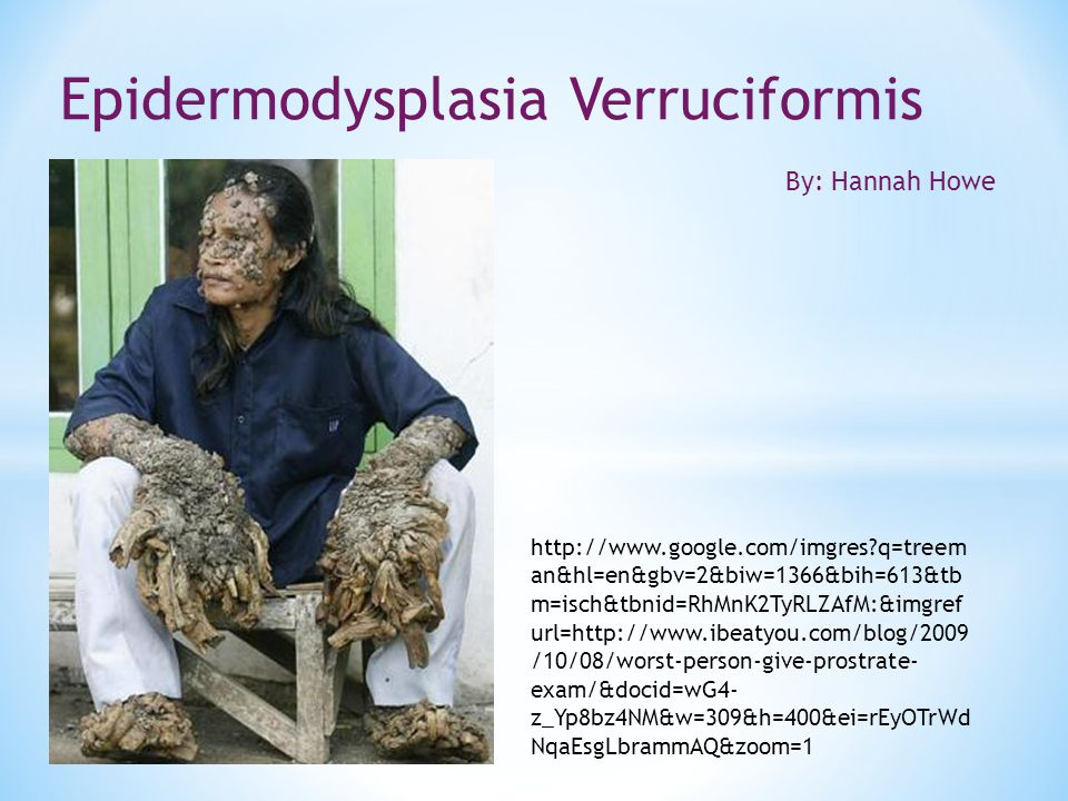 * Epidermodysplasia Verruciformis, or EV, is a rare skin disorder that exposes patients to the human papillomavirus (HPV) and cutaneous squamous cell carcinomas.