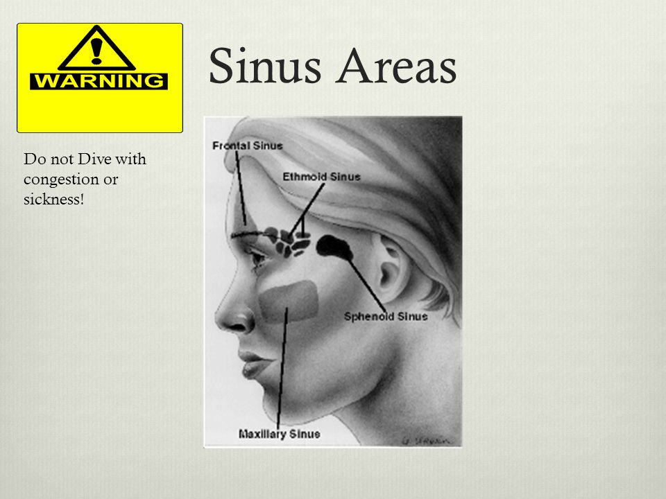 Sinus Areas Do not Dive with congestion or sickness!
