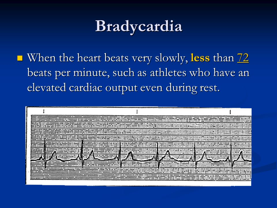 Bradycardia When the heart beats very slowly, less than 72 beats per minute, such as athletes who have an elevated cardiac output even during rest. Wh