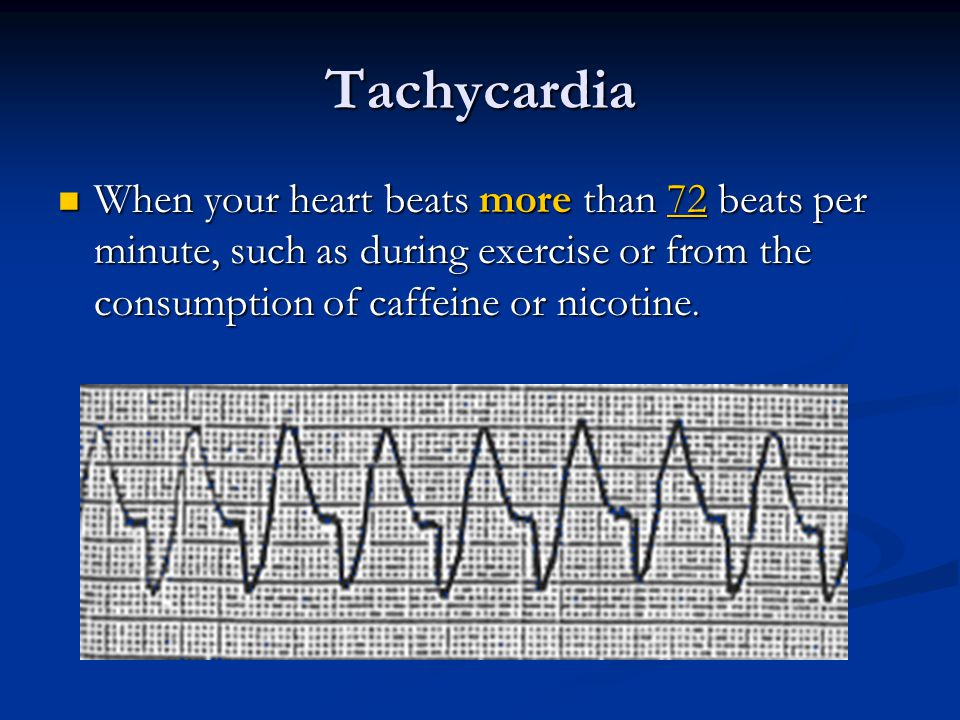 Tachycardia When your heart beats more than 72 beats per minute, such as during exercise or from the consumption of caffeine or nicotine. When your he