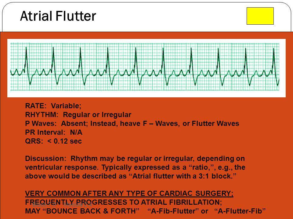 Atrial Flutter RATE: Variable; RHYTHM: Regular or Irregular P Waves: Absent; Instead, heave F – Waves, or Flutter Waves PR Interval: N/A QRS: < 0.12 s
