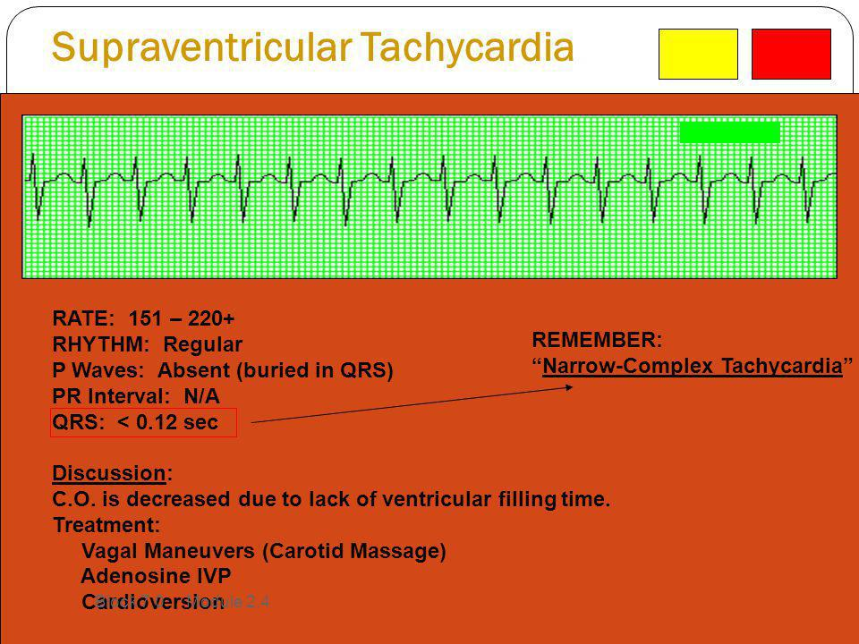 Supraventricular Tachycardia RATE: 151 – 220+ RHYTHM: Regular P Waves: Absent (buried in QRS) PR Interval: N/A QRS: < 0.12 sec Discussion: C.O. is dec