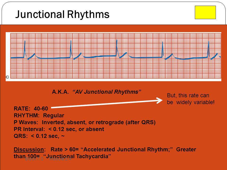 Junctional Rhythms RATE: 40-60 RHYTHM: Regular P Waves: Inverted, absent, or retrograde (after QRS) PR Interval: < 0.12 sec, or absent QRS: < 0.12 sec