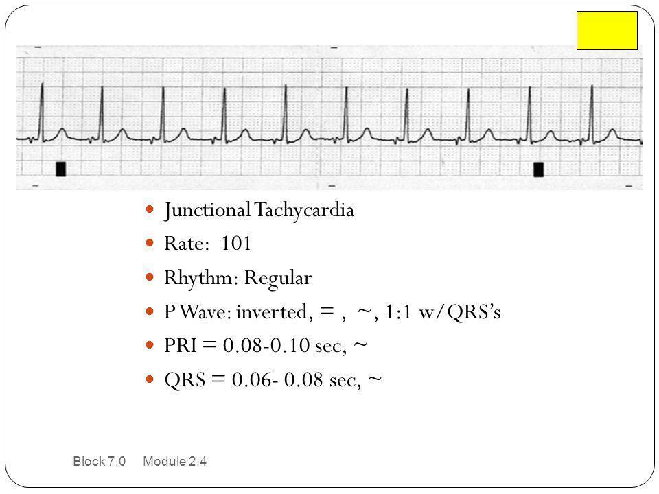 Junctional Tachycardia Rate: 101 Rhythm: Regular P Wave: inverted, =, ~, 1:1 w/QRS's PRI = 0.08-0.10 sec, ~ QRS = 0.06- 0.08 sec, ~ Block 7.0 Module 2