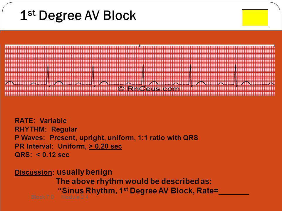 1 st Degree AV Block RATE: Variable RHYTHM: Regular P Waves: Present, upright, uniform, 1:1 ratio with QRS PR Interval: Uniform, > 0.20 sec QRS: < 0.1