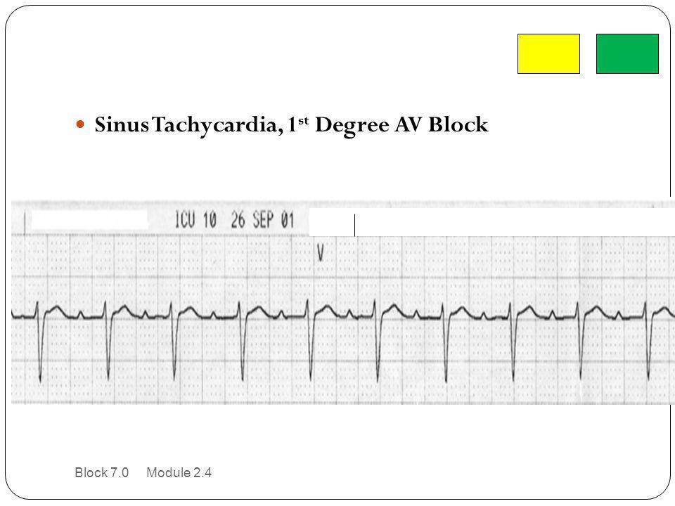Sinus Tachycardia, 1 st Degree AV Block Block 7.0 Module 2.4