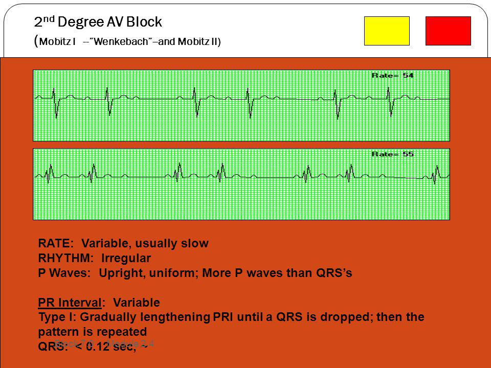 """2 nd Degree AV Block ( Mobitz I --""""Wenkebach""""--and Mobitz II) RATE: Variable, usually slow RHYTHM: Irregular P Waves: Upright, uniform; More P waves t"""
