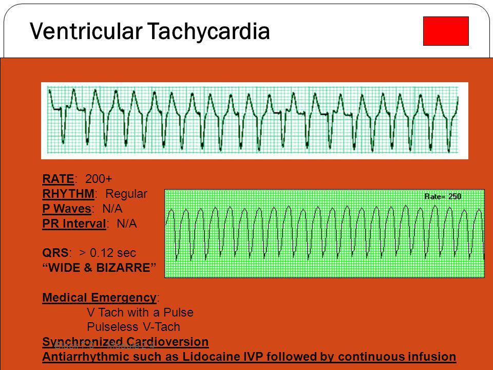 "Ventricular Tachycardia RATE: 200+ RHYTHM: Regular P Waves: N/A PR Interval: N/A QRS: > 0.12 sec ""WIDE & BIZARRE"" Medical Emergency: V Tach with a Pul"