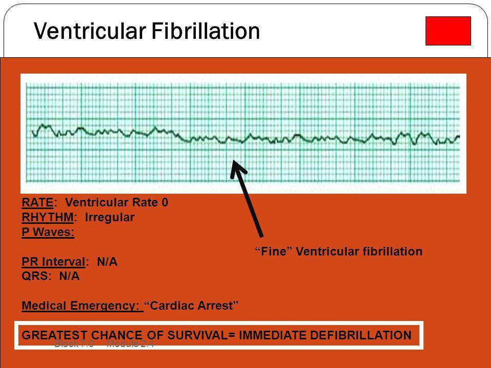 "Ventricular Fibrillation RATE: Ventricular Rate 0 RHYTHM: Irregular P Waves: PR Interval: N/A QRS: N/A Medical Emergency: ""Cardiac Arrest"" GREATEST CH"