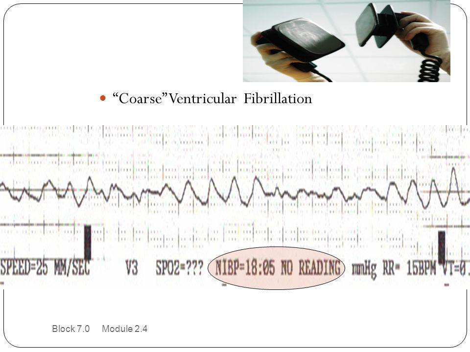 """Coarse"" Ventricular Fibrillation Block 7.0 Module 2.4"
