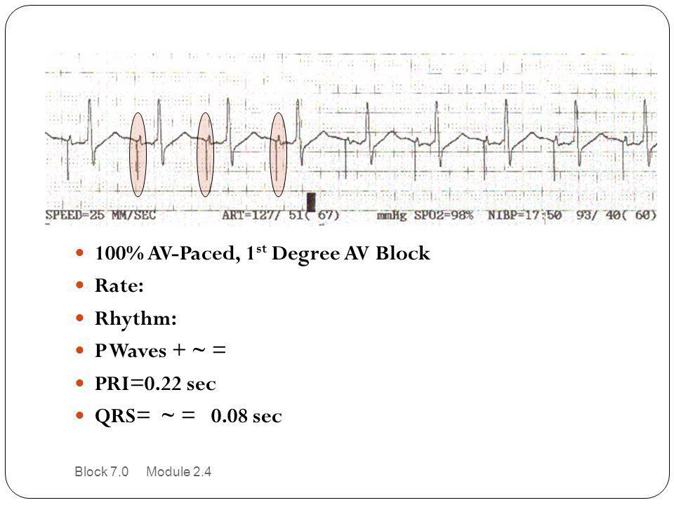 100% AV-Paced, 1 st Degree AV Block Rate: Rhythm: P Waves + ~ = PRI=0.22 sec QRS= ~ = 0.08 sec