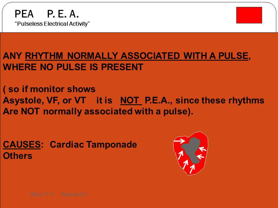 """PEA P. E. A. """"Pulseless Electrical Activity"""" ANY RHYTHM NORMALLY ASSOCIATED WITH A PULSE, WHERE NO PULSE IS PRESENT ( so if monitor shows Asystole, VF"""