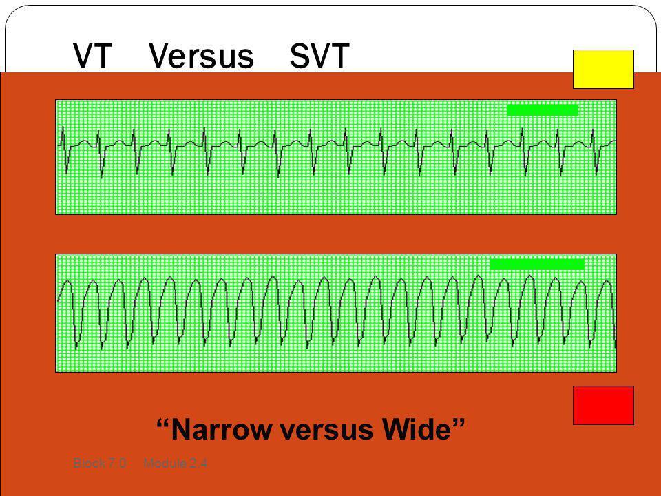 """VT Versus SVT """"Narrow versus Wide"""" Block 7.0 Module 2.4"""