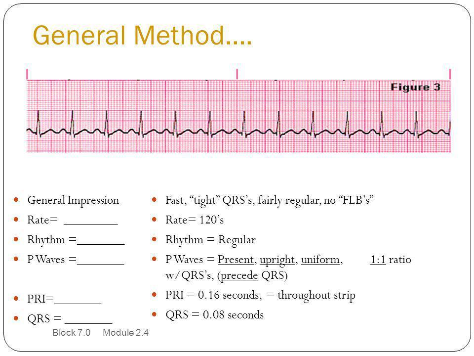 "General Method…. General Impression Rate= ________ Rhythm =_______ P Waves =_______ PRI=_______ QRS = _______ Fast, ""tight"" QRS's, fairly regular, no"