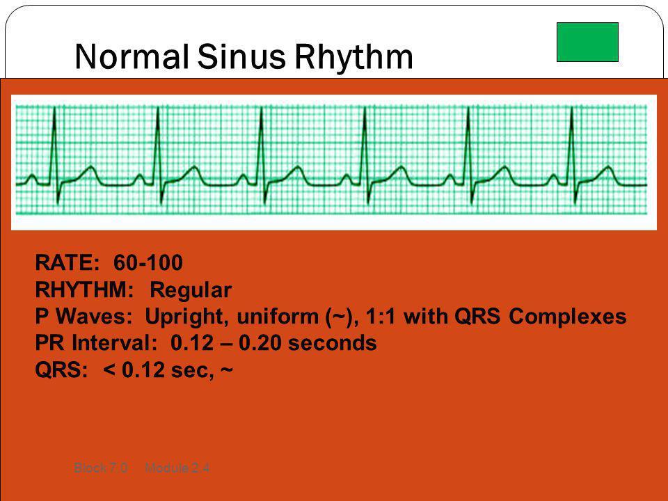 Normal Sinus Rhythm RATE: 60-100 RHYTHM: Regular P Waves: Upright, uniform (~), 1:1 with QRS Complexes PR Interval: 0.12 – 0.20 seconds QRS: < 0.12 se