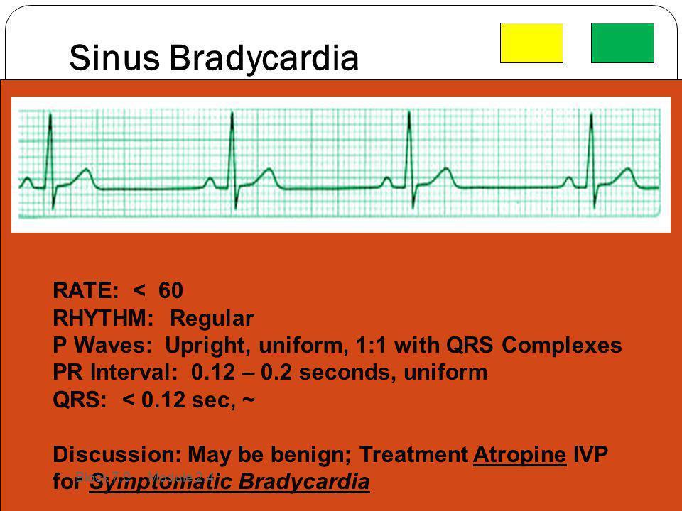 Sinus Bradycardia RATE: < 60 RHYTHM: Regular P Waves: Upright, uniform, 1:1 with QRS Complexes PR Interval: 0.12 – 0.2 seconds, uniform QRS: < 0.12 se