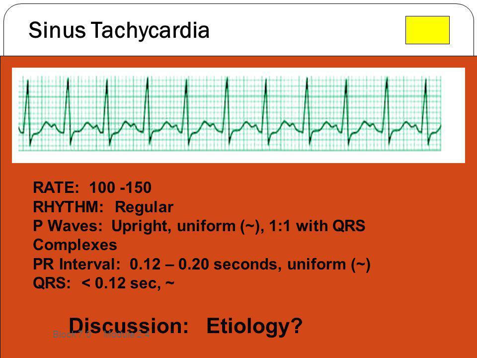 Sinus Tachycardia RATE: 100 -150 RHYTHM: Regular P Waves: Upright, uniform (~), 1:1 with QRS Complexes PR Interval: 0.12 – 0.20 seconds, uniform (~) Q