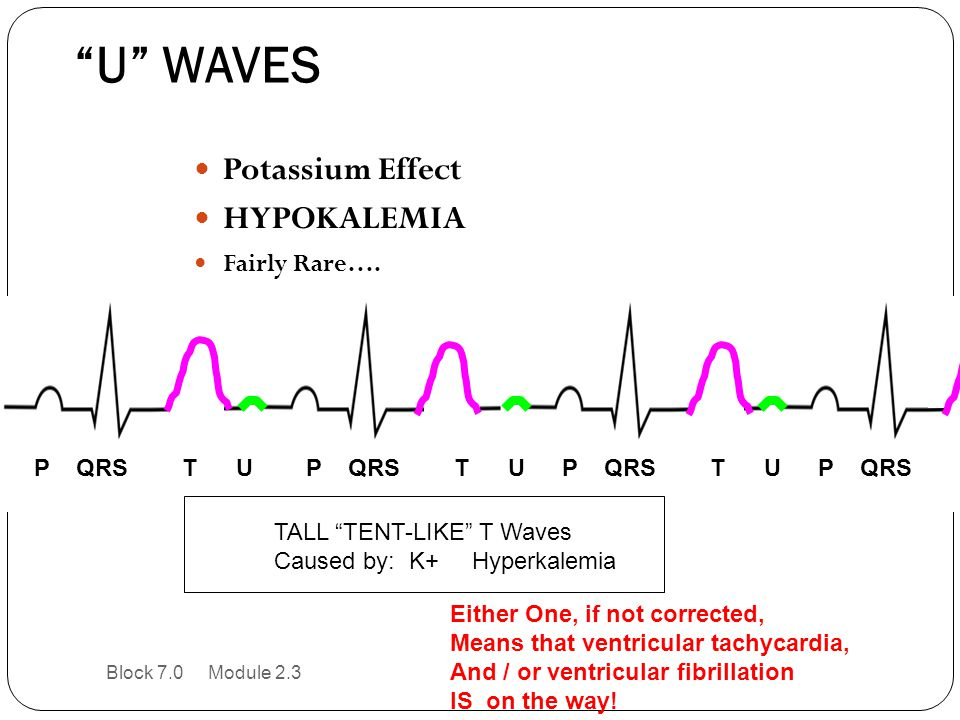 """U"" WAVES Potassium Effect HYPOKALEMIA Fairly Rare…. P QRS T UP QRS T UP QRS T U P QRS T U TALL ""TENT-LIKE"" T Waves Caused by: K+ Hyperkalemia Either"