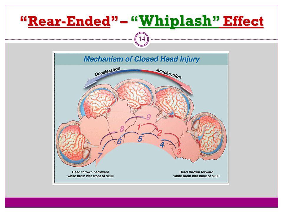 """""""Rear-Ended"""" – """" Whiplash """" Effect 14"""