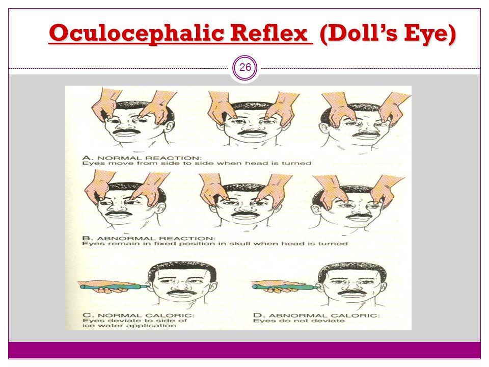 Oculocephalic Reflex (Doll's Eye) 26