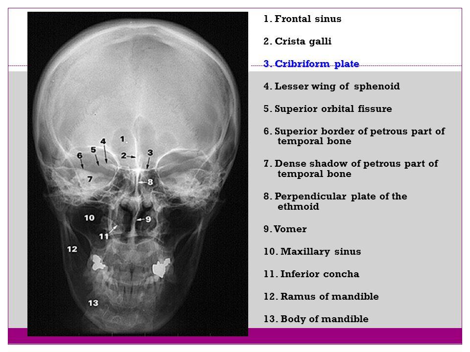 42 1. Frontal sinus 2. Crista galli 3. Cribriform plate 4. Lesser wing of sphenoid 5. Superior orbital fissure 6. Superior border of petrous part of t