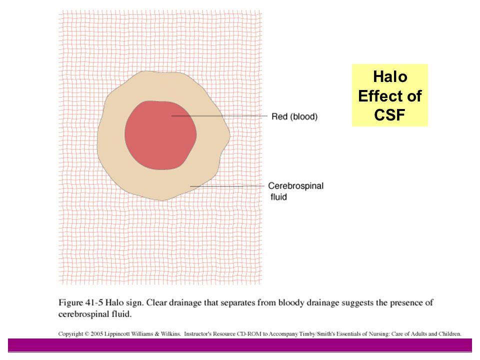 44 Halo Effect of CSF