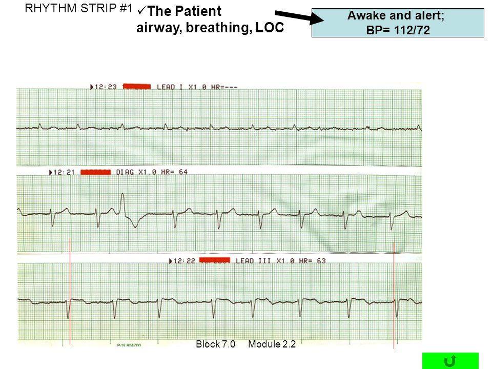 Awake and alert; BP= 112/72 RHYTHM STRIP #1 The Patient airway, breathing, LOC Block 7.0 Module 2.2