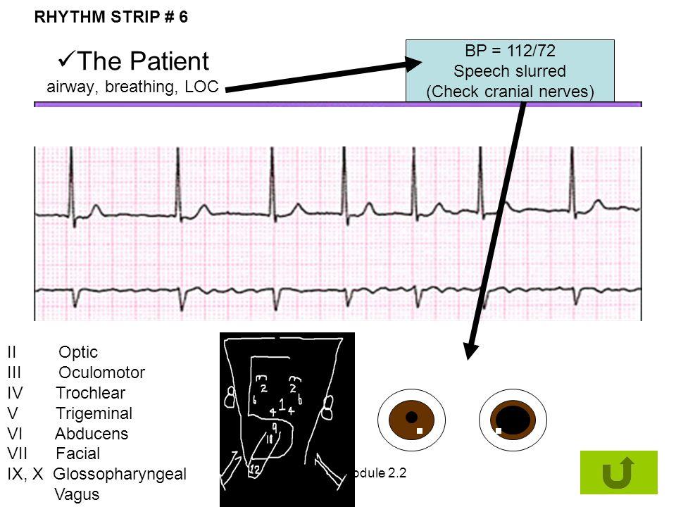 The Patient airway, breathing, LOC RHYTHM STRIP # 6 BP = 112/72 Speech slurred (Check cranial nerves) II Optic III Oculomotor IV Trochlear V Trigemina