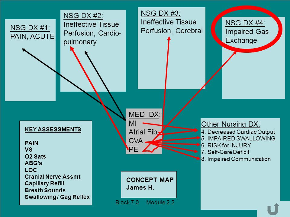 MED DX: MI Atrial Fib CVA PE NSG DX #1: PAIN, ACUTE NSG DX #2: Ineffective Tissue Perfusion, Cardio- pulmonary NSG DX #3: Ineffective Tissue Perfusion