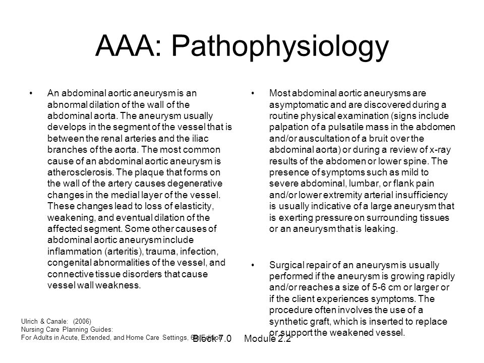 AAA: Pathophysiology An abdominal aortic aneurysm is an abnormal dilation of the wall of the abdominal aorta. The aneurysm usually develops in the seg