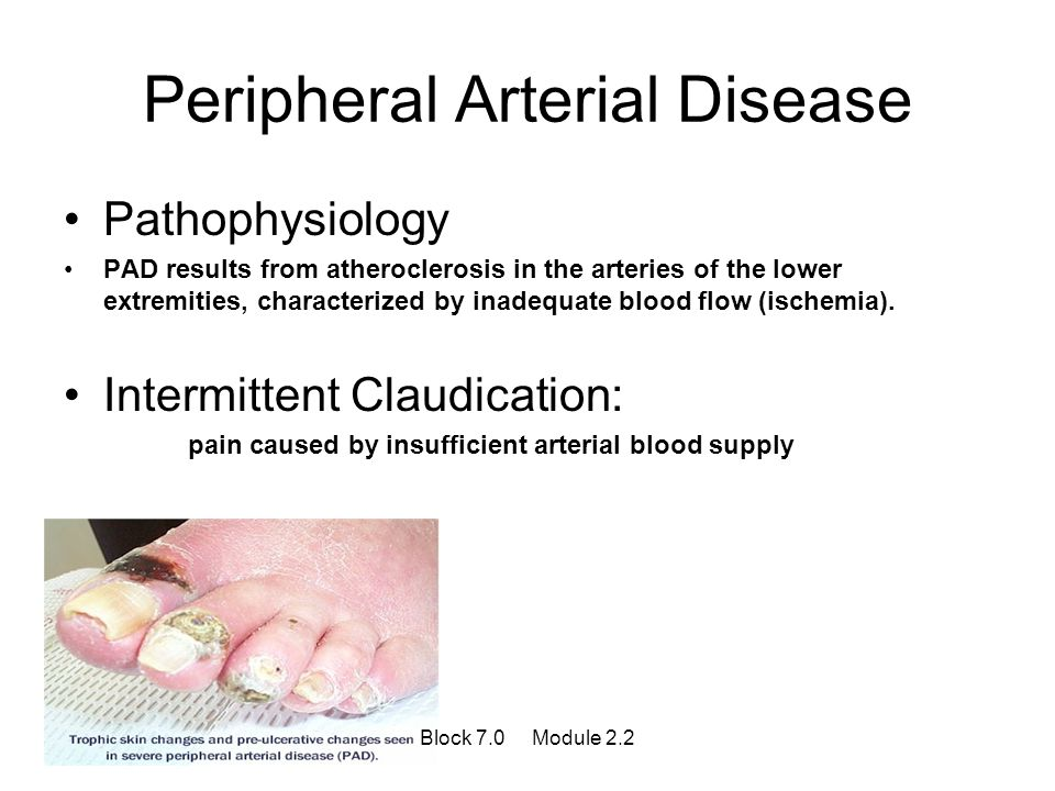 Peripheral Arterial Disease Pathophysiology PAD results from atheroclerosis in the arteries of the lower extremities, characterized by inadequate bloo