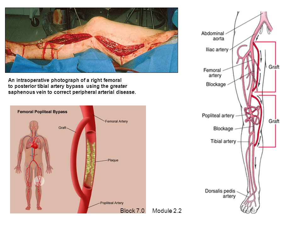 An intraoperative photograph of a right femoral to posterior tibial artery bypass using the greater saphenous vein to correct peripheral arterial dise