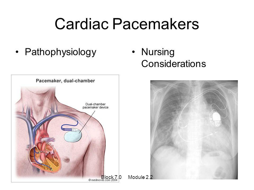 Cardiac Pacemakers PathophysiologyNursing Considerations Block 7.0 Module 2.2