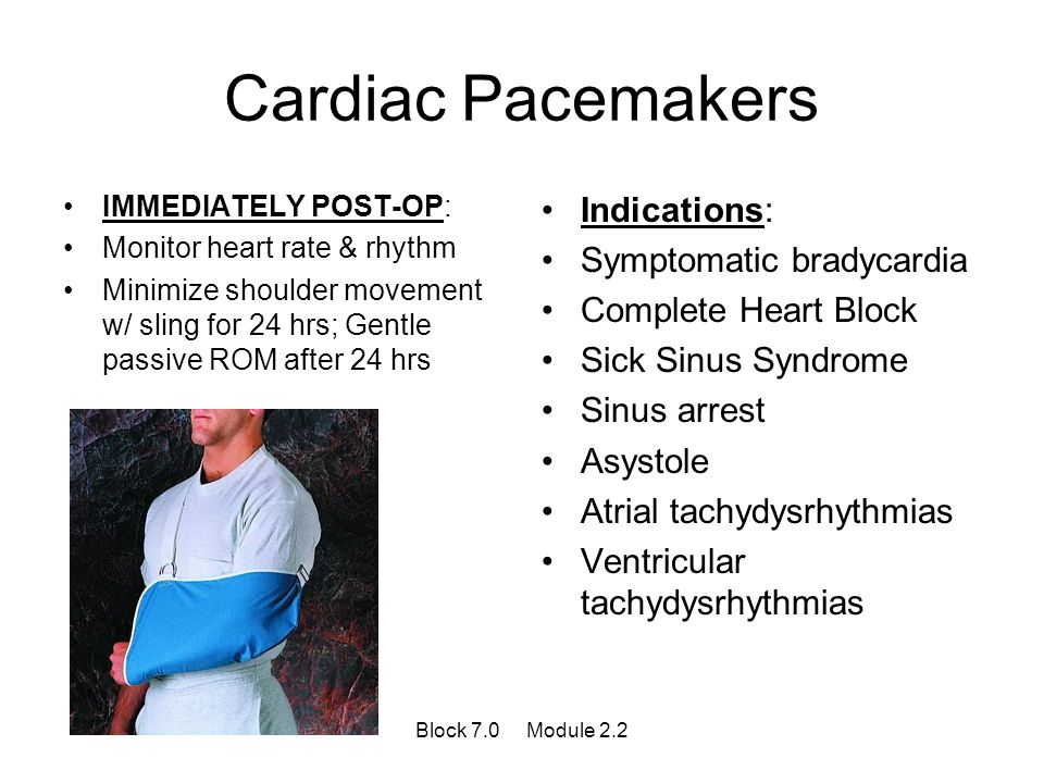 Cardiac Pacemakers IMMEDIATELY POST-OP: Monitor heart rate & rhythm Minimize shoulder movement w/ sling for 24 hrs; Gentle passive ROM after 24 hrs In