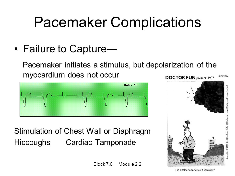 Pacemaker Complications Failure to Capture— Pacemaker initiates a stimulus, but depolarization of the myocardium does not occur Stimulation of Chest W