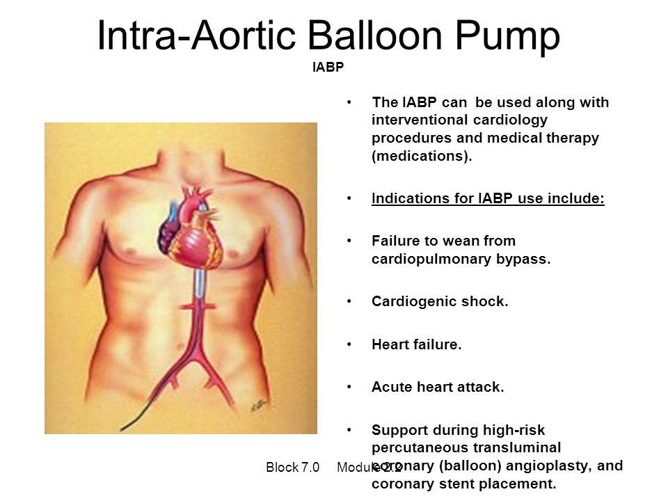Intra-Aortic Balloon Pump IABP The IABP can be used along with interventional cardiology procedures and medical therapy (medications). Indications for