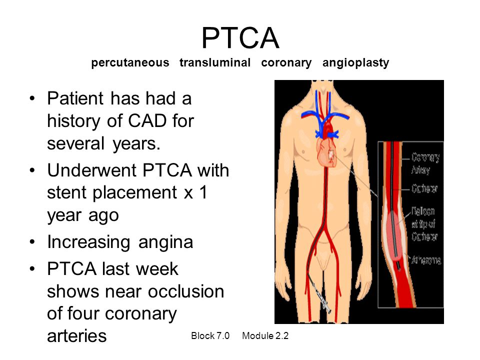 PTCA percutaneous transluminal coronary angioplasty Patient has had a history of CAD for several years. Underwent PTCA with stent placement x 1 year a