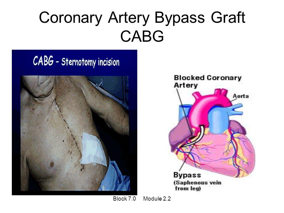 Coronary Artery Bypass Graft CABG Block 7.0 Module 2.2