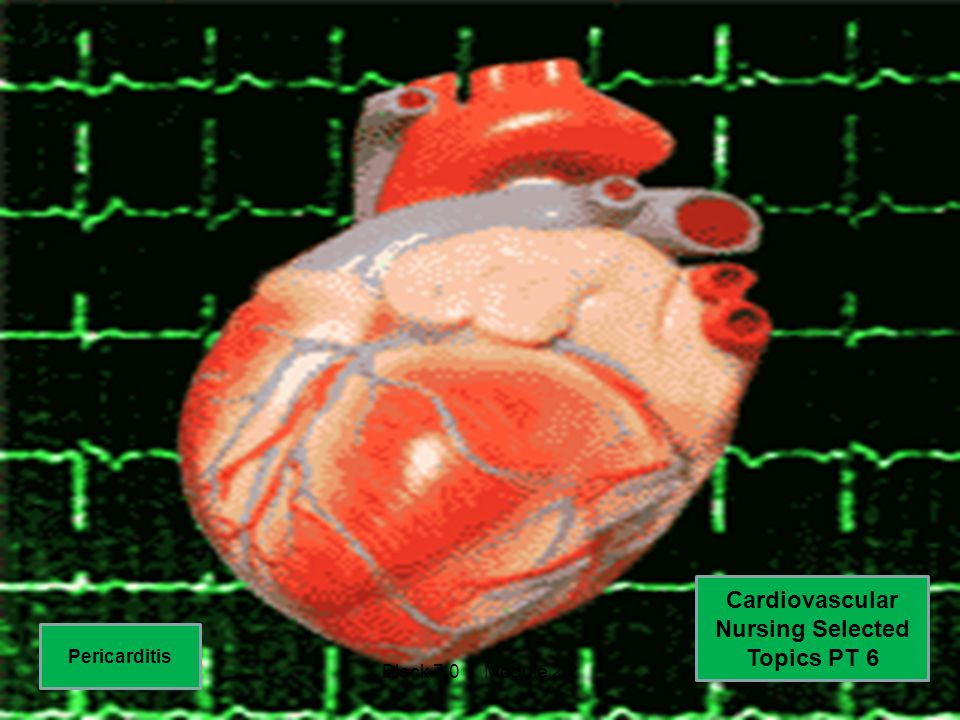 Cardiovascular Nursing Selected Topics PT 6 Pericarditis Block 7.0 Module 2.2